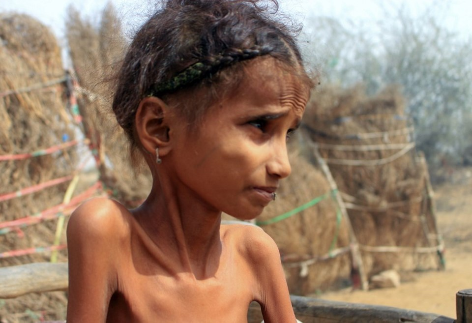 Savaşın getirdiği açlık nedeniyle her yıl binlerce Yemenli çocuk yetersiz beslenme nedeniyle ölüyor