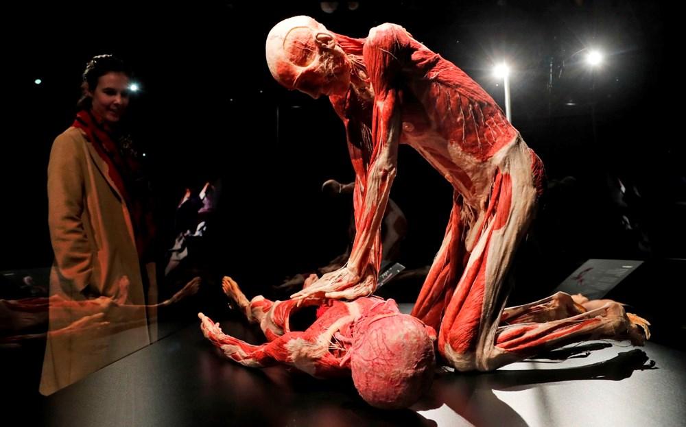 Lordlar Kamarası'ndan kadavra sergisine tepki - 8