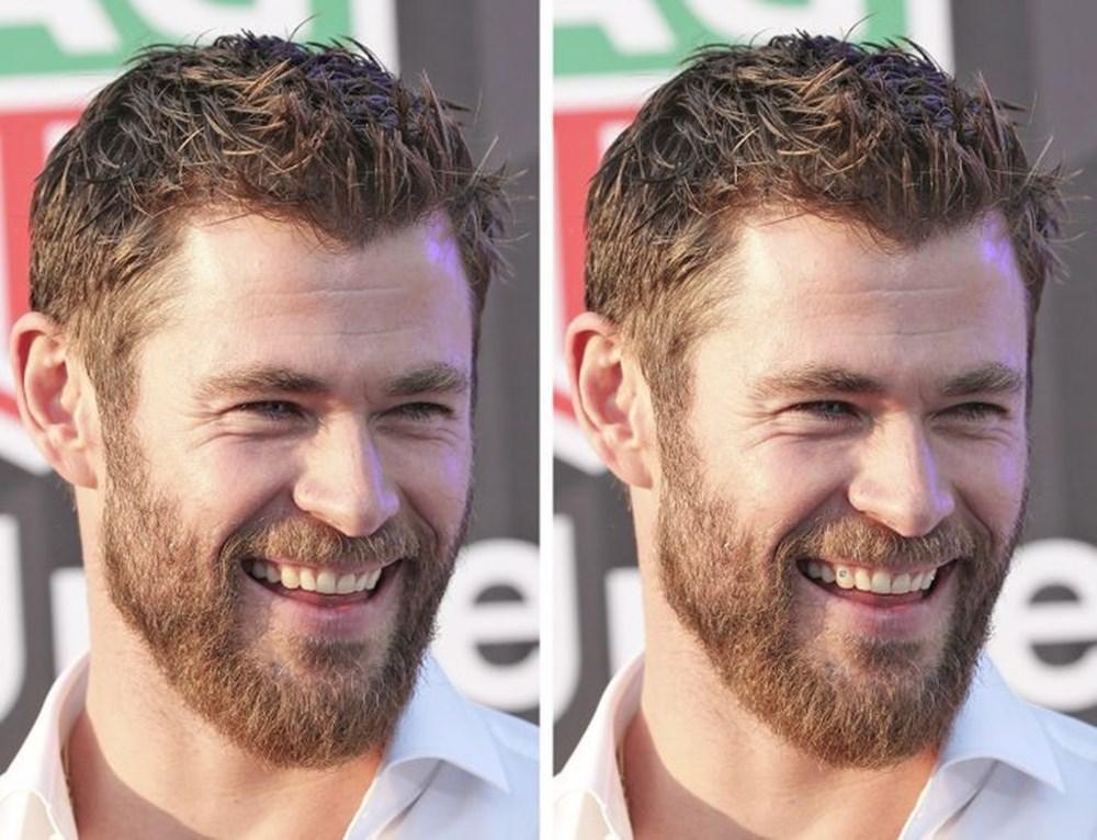 Bir dişin ünlülerin yüz ifadesini ne kadar değiştirebileceğini gösteren fotoğraflar - 5
