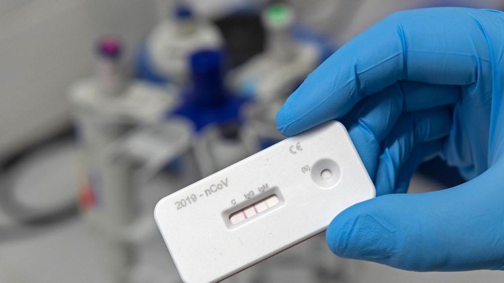 Antikor testi nedir? (Corona virüs ve antikor testleri hakkında sık sorulan sorular ve cevapları) - 3
