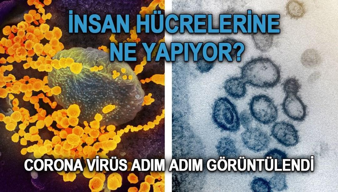Bildergebnis für Koronavirüs insan hücrelerine ne yapıyor? Adım adım görüntülendi