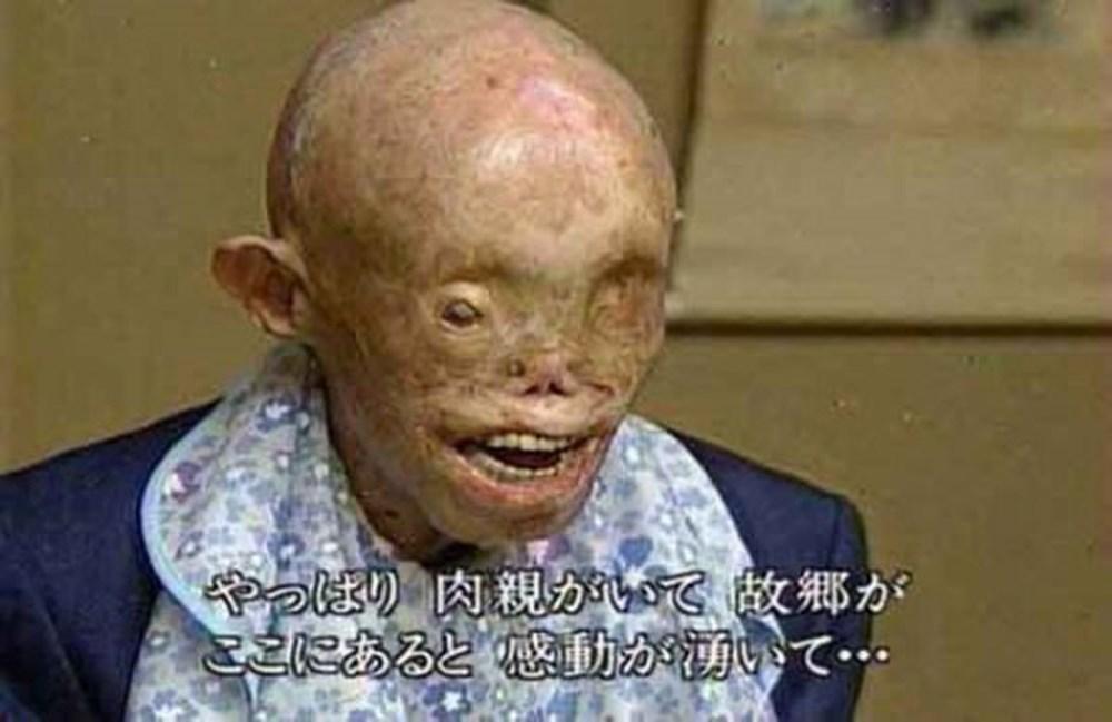 İnsanlığın kaybettiği yer: Hiroşima - 22