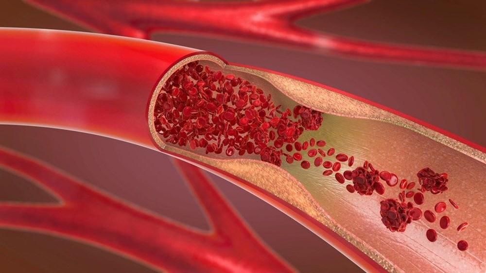 """Kan grubu """"0"""" olanlar corona virüse karşı daha avantajlı: İki yeni çalışma destekledi - 8"""