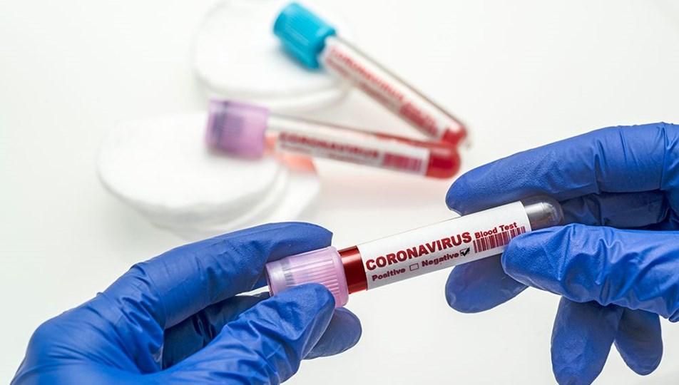 18 Ekim2020 corona virüs tablosu:72 can kaybı, bin 815 yeni hasta sayısı