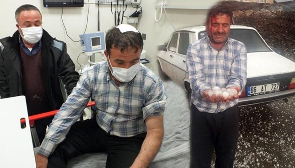 Geçtiğimiz günlerde Yozgat'ta etkili olan 'Ceviz büyüklüğü'ndeki dolu yağışında aracını korumaya çalışan bir kişi yaralanmıştı.
