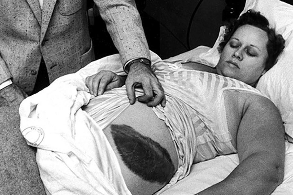 Bilinen ilk meteor kurbanı Ann Elizabeth Fowler Hodges.