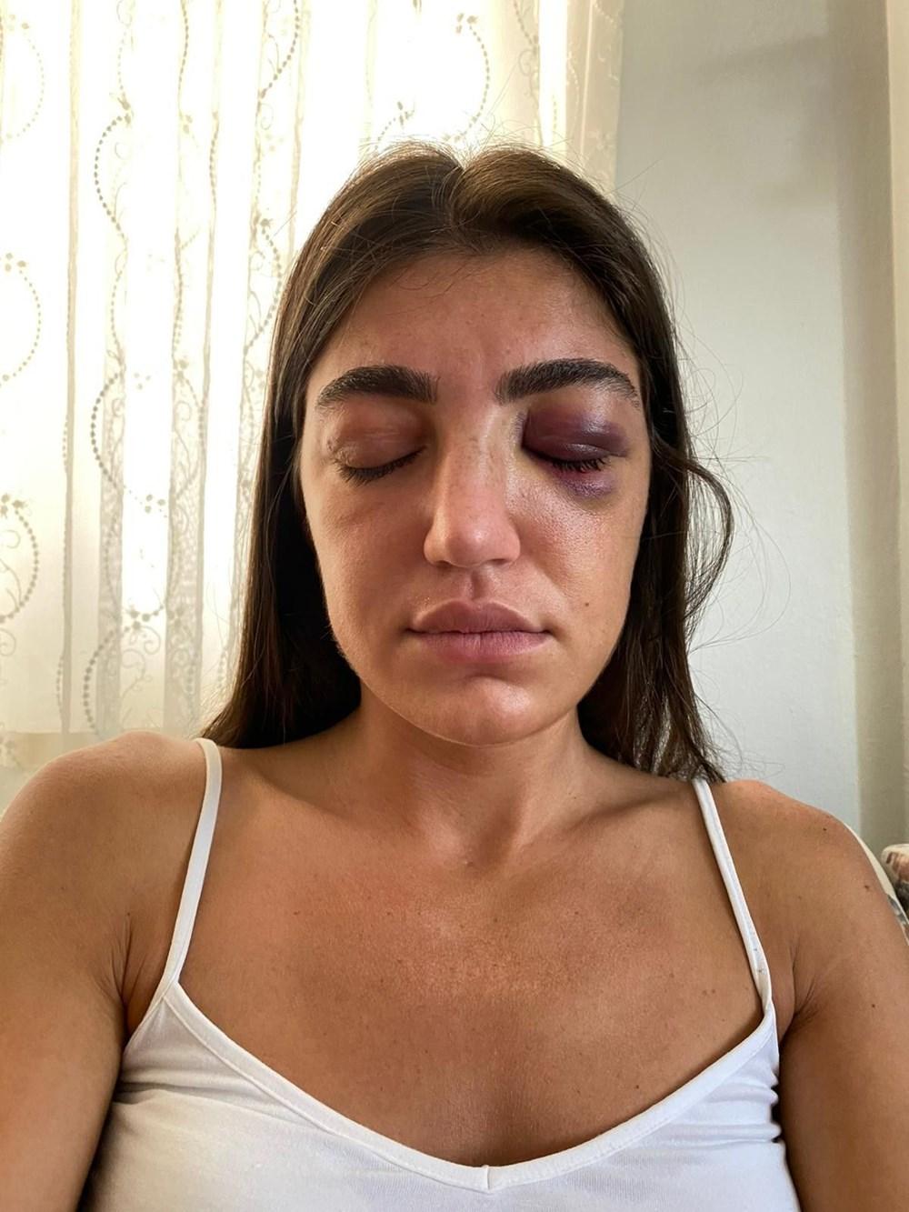 Model Gizem Akbaş'a öldüresiye dayak (Mücahit İsmail Ayta tutuklandı) - 11