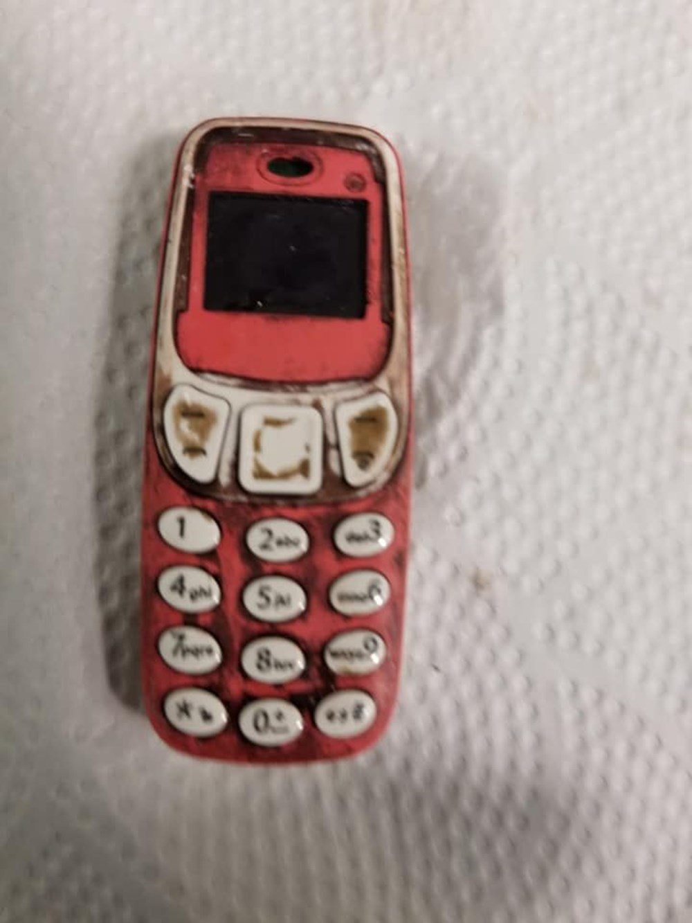 Doktorları şaşırtan ameliyat: Midesinden Nokia 3310 çıktı - 1