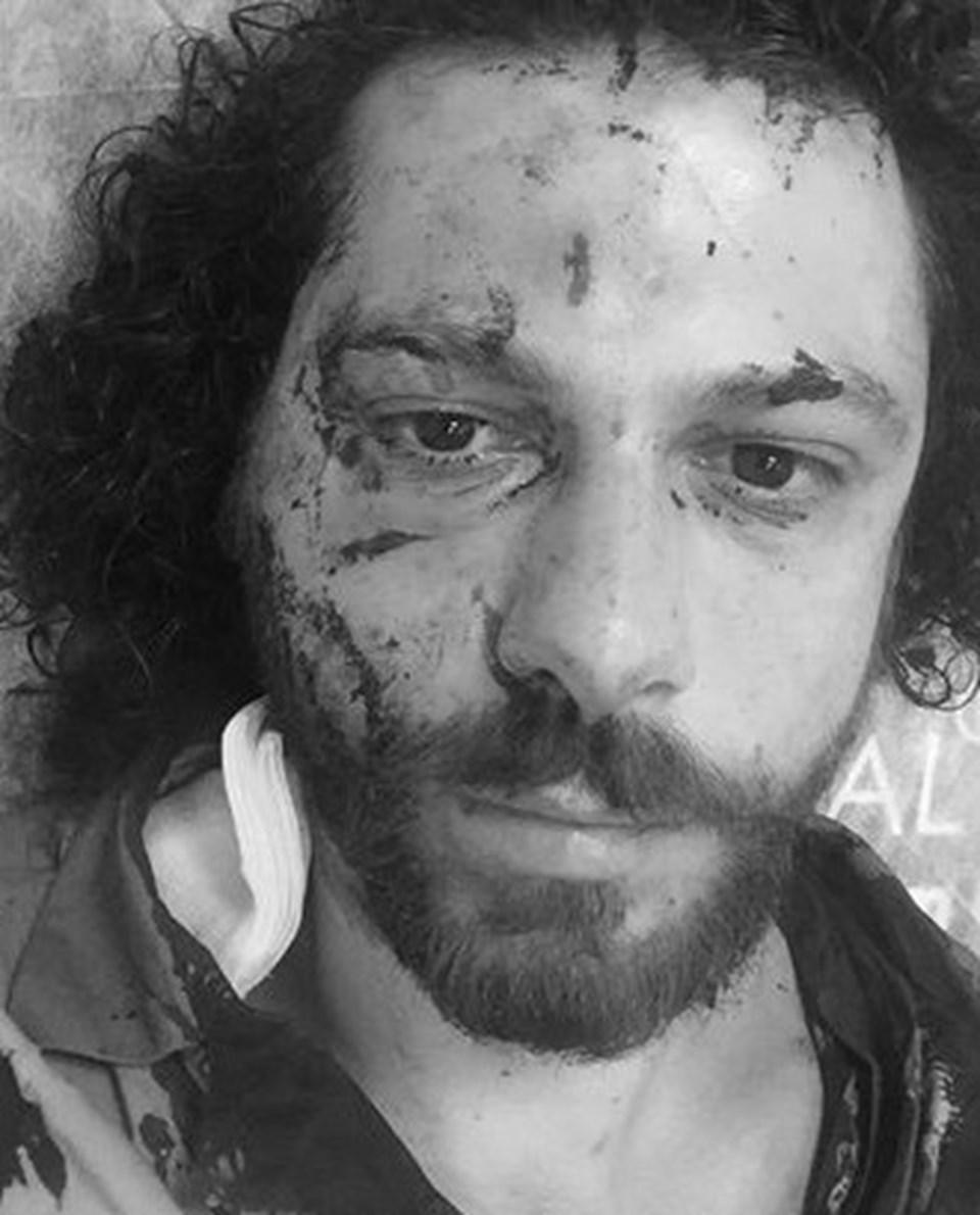 Oral Özer olay sonrası son halini sosyal medyadan yayınladı.