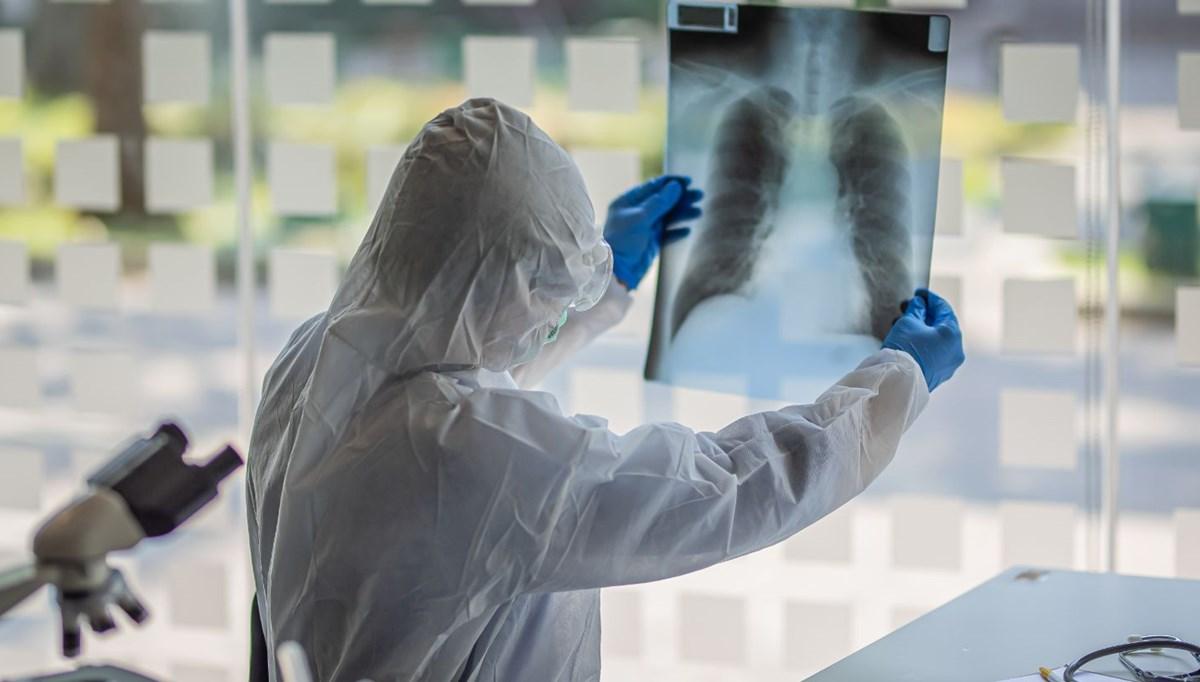Korkutan Corona virüs araştırması