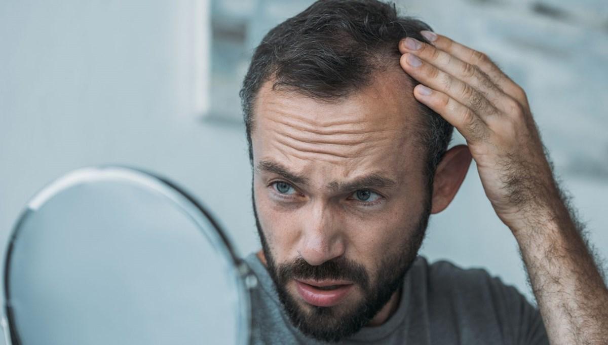 Kellikten etkilenen erkeklerin şiddetli Covid-19'a yakalanma ihtimali 2,5 kat daha fazla