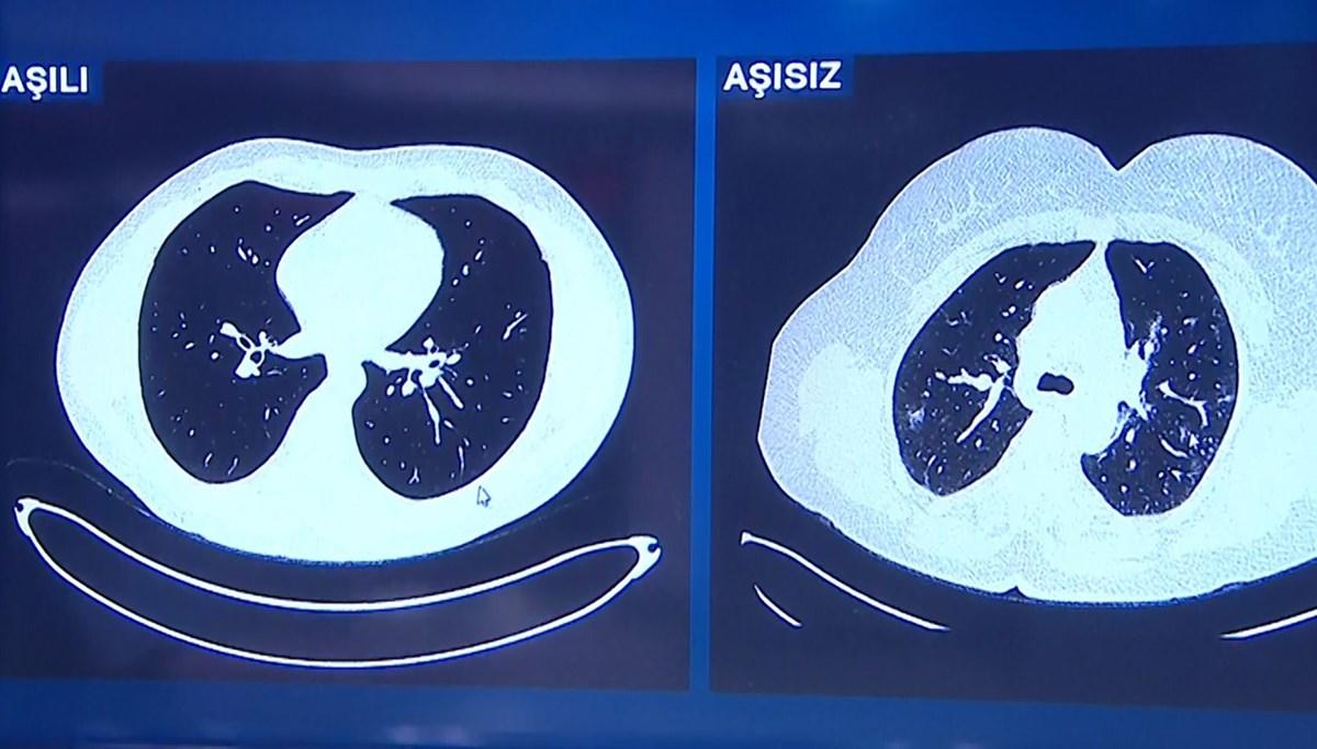 Gençlerin akciğerinde aşı farkı