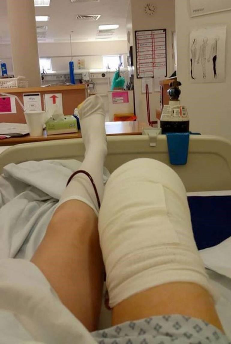Ewing sarkomu: semptomlar, prognoz, tedavi