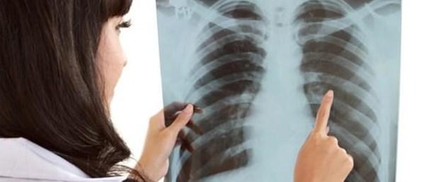 Akciğer kanserinde immünoterapi yaşam süresini artıyor.Jpeg