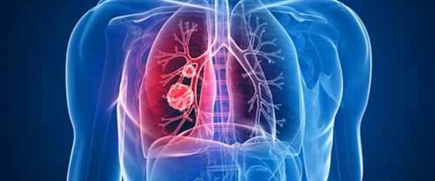 Akciğer kanseri riskiniz ne kadar?