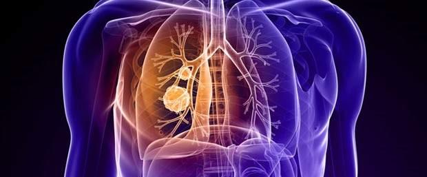 Akciğer kanseri tedavisinde intratümöral kemoterapi.jpg