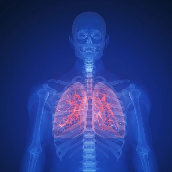Akciğer kanserinde tedavi başarısı'