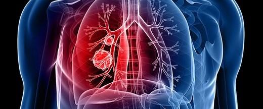 Akciğer kanserinin 7 belirtisine dikkat!.jpg