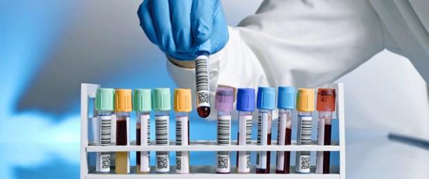 Akıllı moleküllerle prostat kanseri tanısı