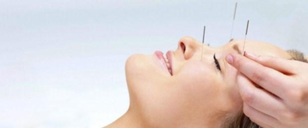 akupunkturun bilinmeyen kullanım alanları.jpg