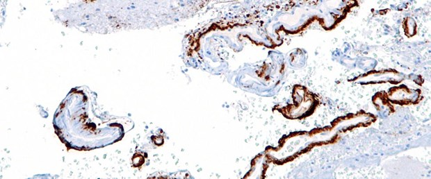 cerebral_amyloid_angiopathy_-2b-_amyloid_beta_-_intermed_mag_-_cropped.jpg