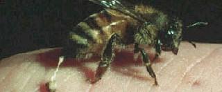 Arı sokmasında doğru bilinen yanlışlar