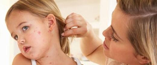 Aşırı hijyen, alerjik hastalıkları artırıyor