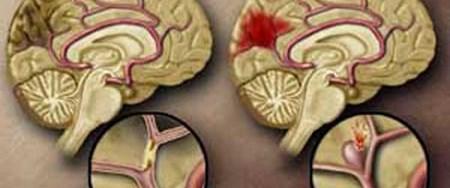 Beyin kanamasında zamanla yarışılıyor