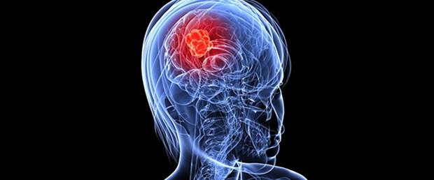 Beyin kanserinde ömrü uzatan yöntem.jpg
