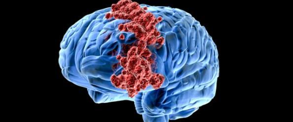 Beyin kanseri hastaları için yeni umut.jpg