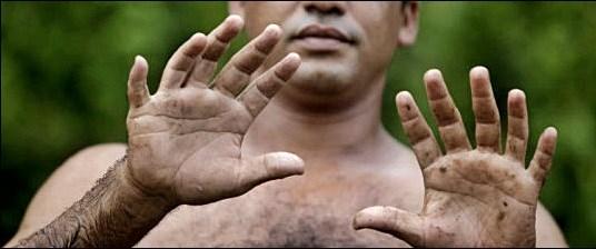 6 parmaklı insanlar.jpg