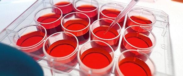 Genç insan kanı yaşlılığa çözüm olabilir.jpg