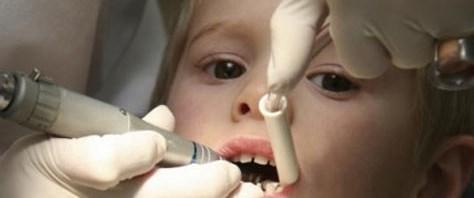 Çocuk diş tedavisinde genel anestezi
