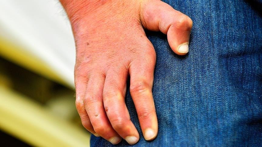 Cüzzam, organlarda deformite yaratan bir hastalık