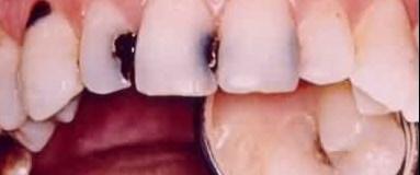Diş çürüğü kalp krizine neden olabilir