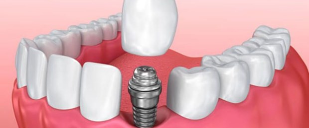 implant DHA.jpg