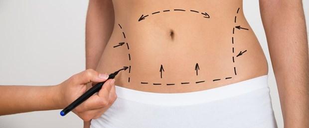 Liposuction_03.jpg