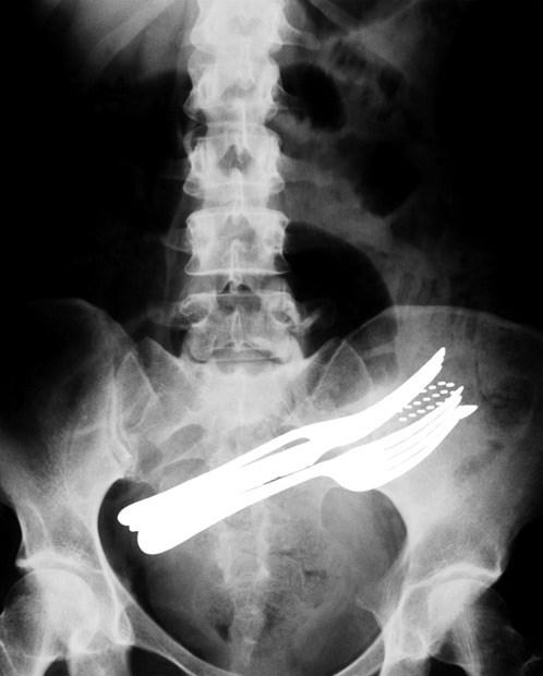 Dünyanın en tuhaf röntgenleri