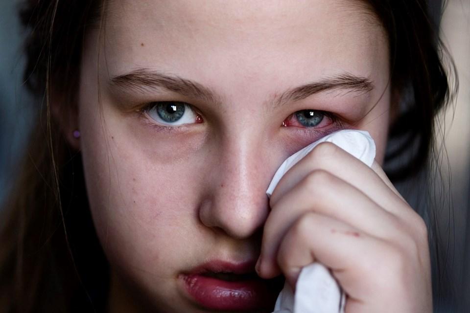 Konjonktivit yaşayanların en büyük sıkıntısı bakteriyel enfeksiyonların dagelişme riski.