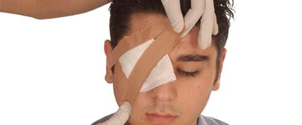 göz yaralanması