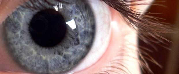 Gözler, Alzheimer'ı ele verebilir