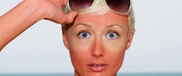 Güneş yanıkları için pratik çözümler.jpg
