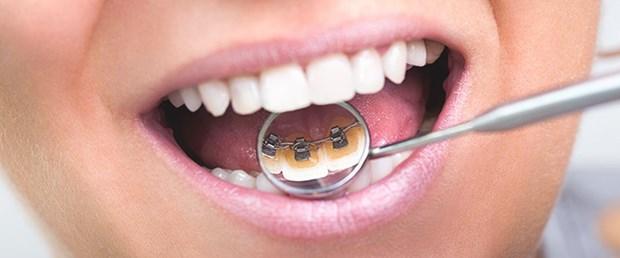 ortodonti-nedir-dis-teli-hakkinda.jpg