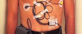 Holter EKG, on binleri ölümden kurtarabilir