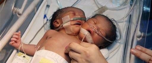 İki başlı tek vücutlu yapışık ikizler doğdu