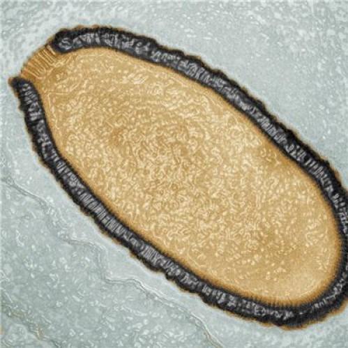 Sibirya'nın Chukotka bölgesinde bulunan 30 bin yılllık dev virüs pithovirussibericum.