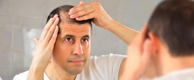 saç dökülmesi 3.jpg