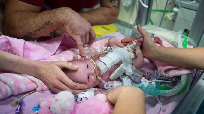 Kalbi dışarıda doğdu, 3 ameliyatla göğüs kafesine yerleştirildi