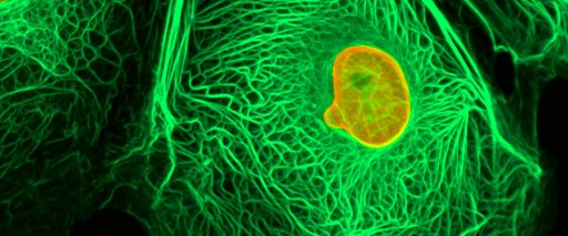 Kanser tüm dünyada hızla yaygınlaşıyor