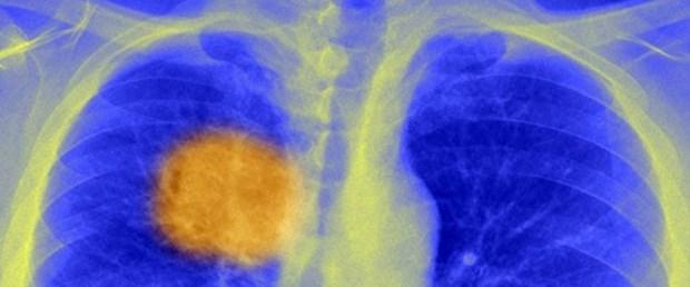 _88564199_c0212967-lung_cancer,_x-ray-spl.jpg